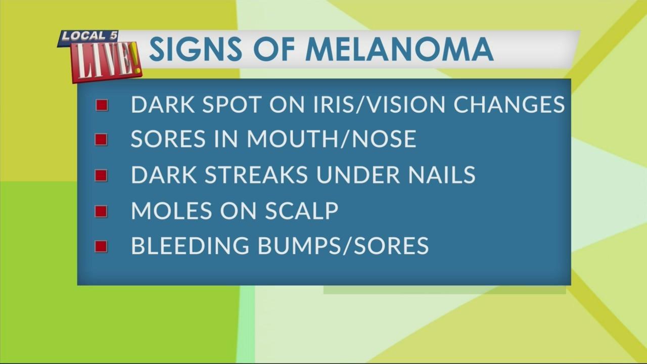 Smart Living: Reduce Your Risk of Melanoma