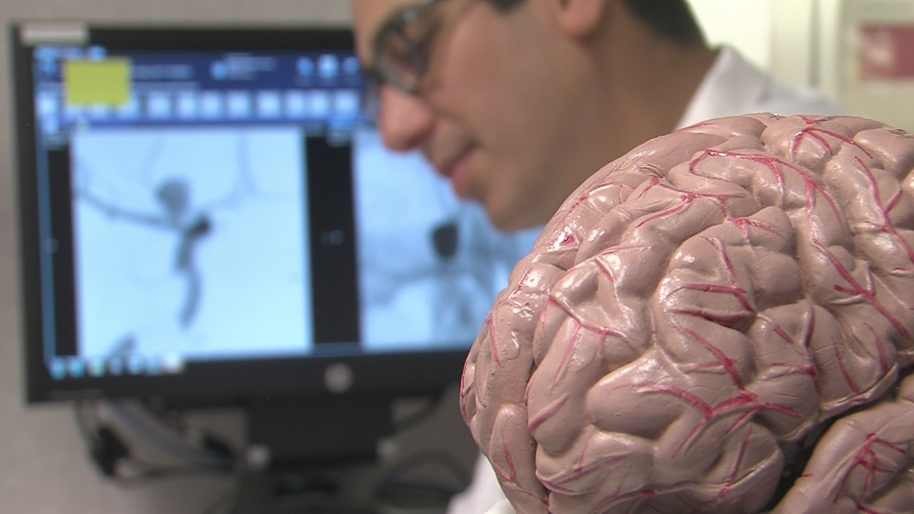 Healthwatch: Comprehensive Stroke Center