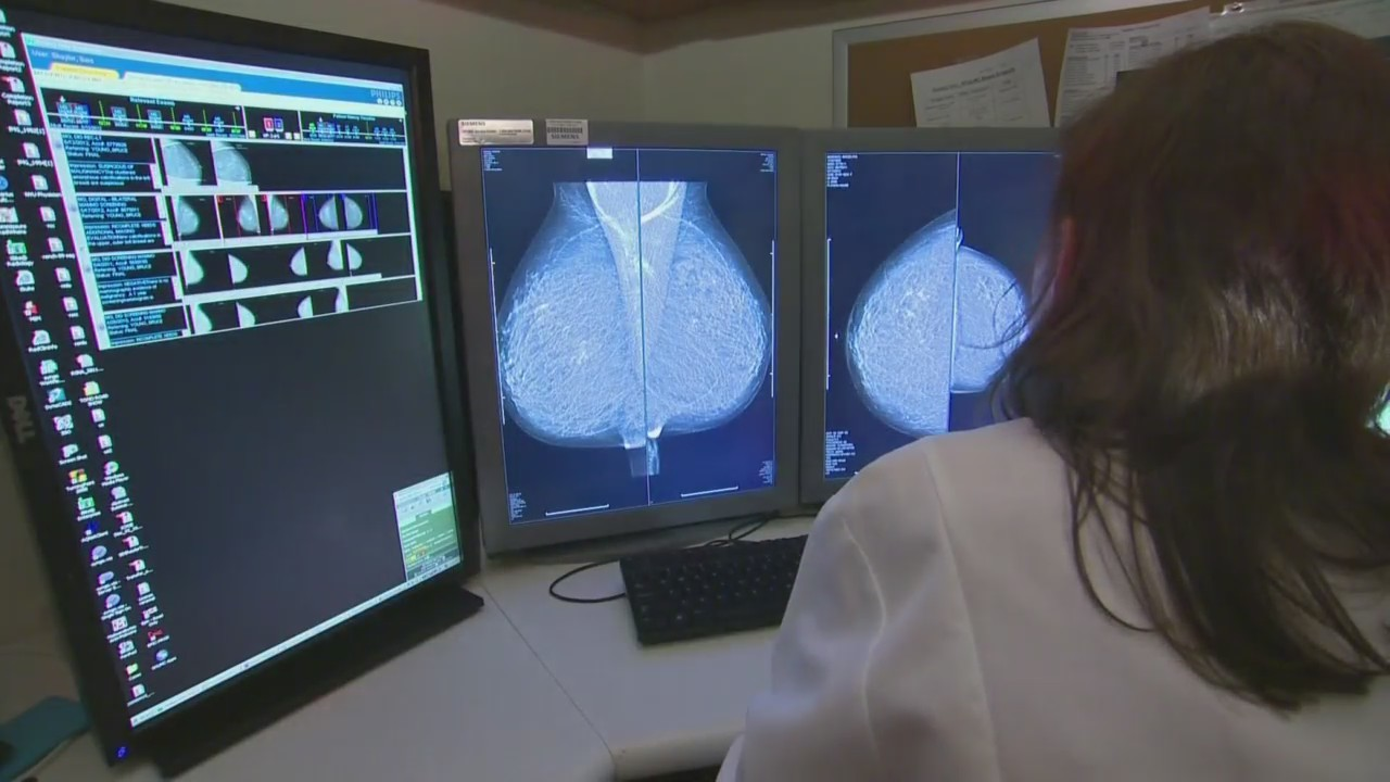 Aurora Baycare Breast Cancer Tips