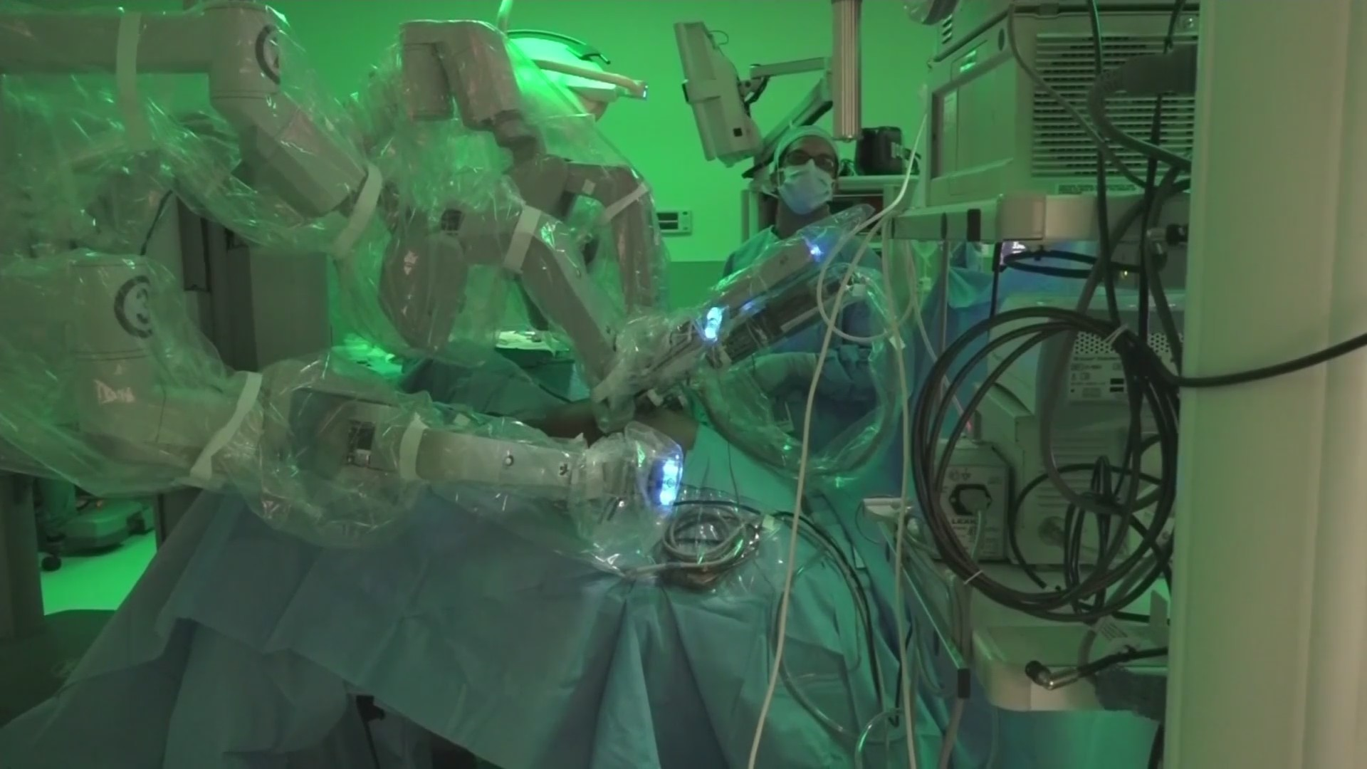 Healthwatch: Robotic Assisted Surgery